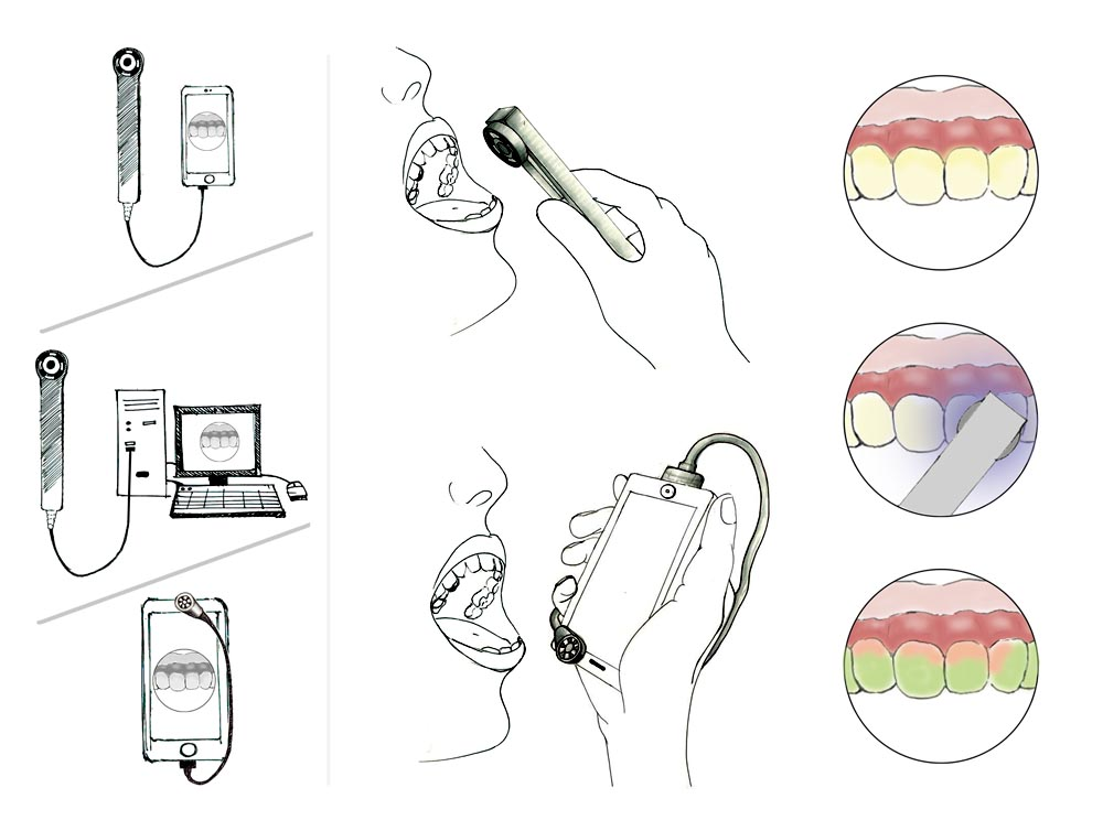 Novel BioImageMarkers for oral cancer screening